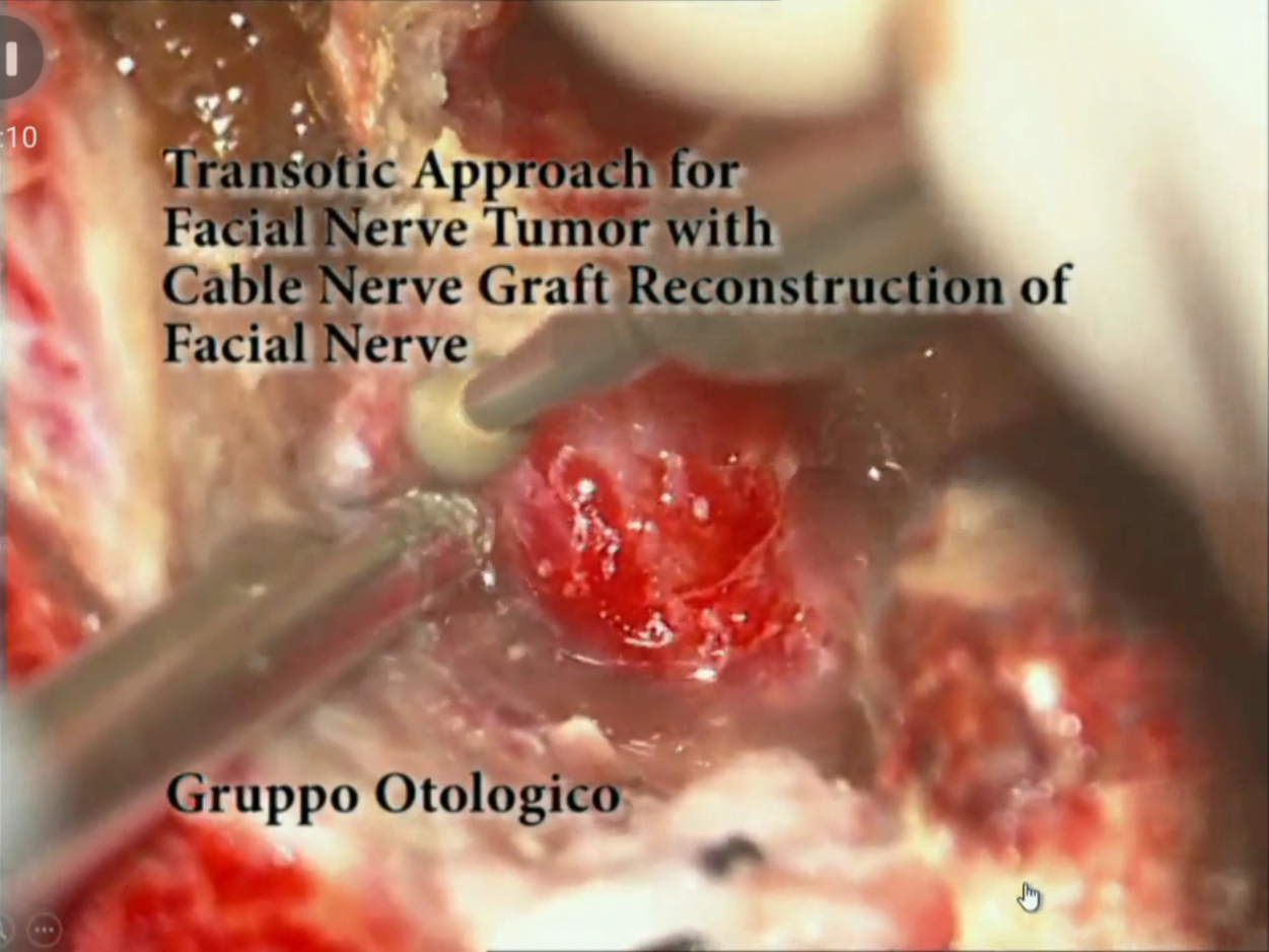 Facial nerve congress can look