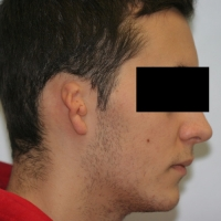 Microtia (pinna) reconstruction